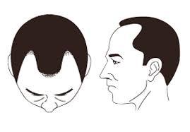 薄毛の原因。M型の場合