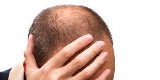 薄毛治療の効果ないことはシャンプーブラシ
